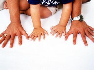 полидактилия рук