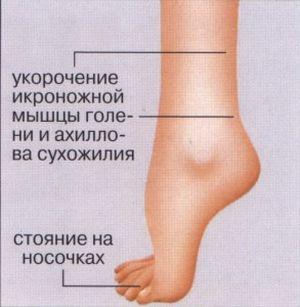 симптомы пареза стопы