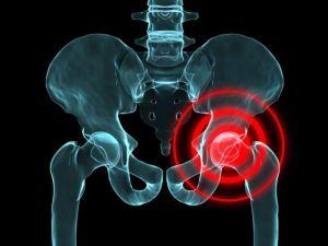 болезнь пертеса тазобедренного сустава