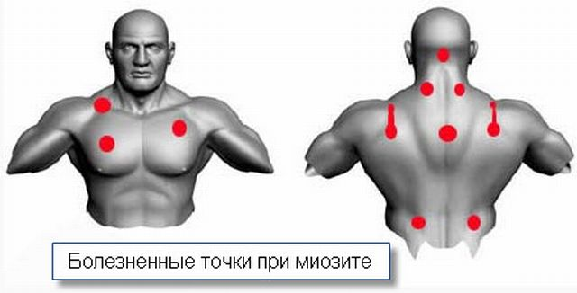 локализация болевых ощущений