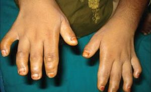 брахидактилия пальцев