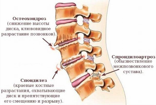 спондилоартроз грудного отдела