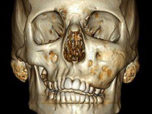 фиброзная дисплазия черепа