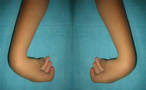 артрогрипоз рук