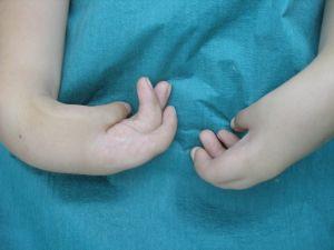 артрогрипоз у ребенка