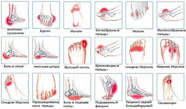 Причины болей в стопе