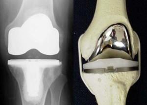 Диагностика рентген