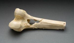 фиброзная остеодисплазия