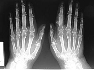 остеохондрома кости
