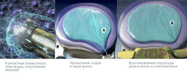 Как проходит операция
