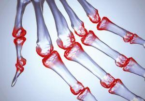 Вирусный артрит