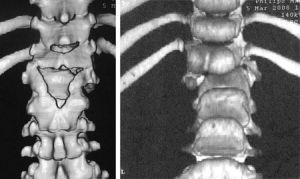 клиновидный полупозвонок на МРТ