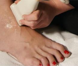 Лечение тендовагинита стопы
