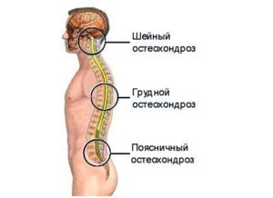 Локации остеохондроза позвоночника