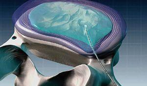 холодноплазменная нуклеопластика диска
