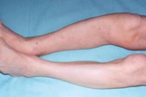 остеодистрофия и ее причины
