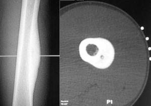 остеоид остеома бедренной кости
