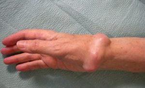 остеоид остеома руки