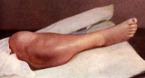 Остеосаркома колена