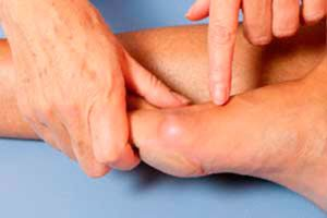 патология пальцев