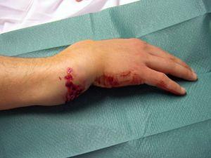 Травмы руки