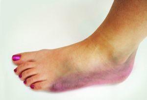 симптомы травмы стопы