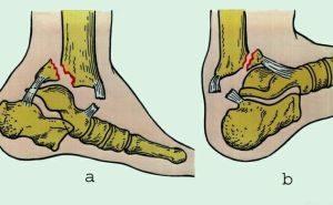 Виды переломов стопы