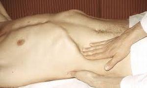 хондрома ребра