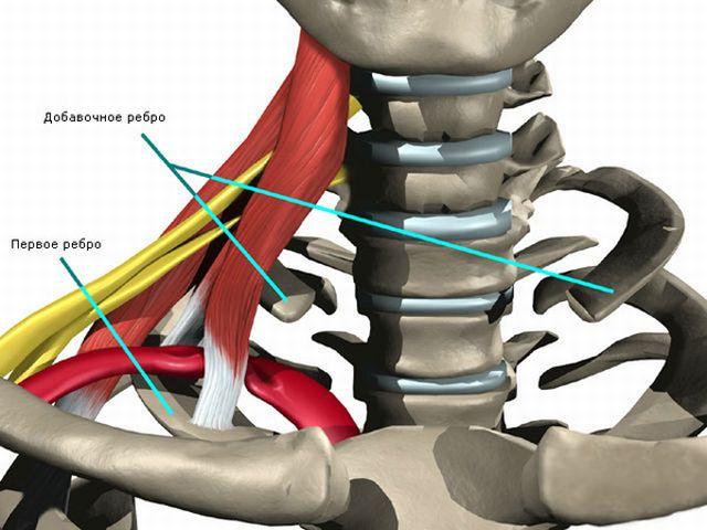 синдром шейного ребра