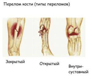 типы переломов руки