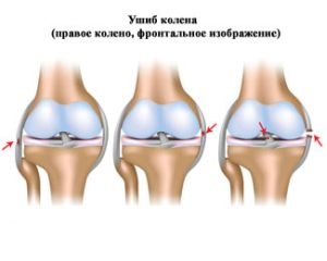 травма правого колена