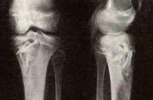 Абсцесс броди на рентгенен