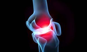 артрит суставов