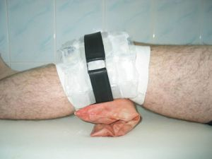 Остеофиты коленного сустава лечение