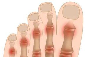 Полиартроз ступней