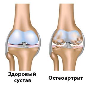 остеоартрит и здоровый сустав