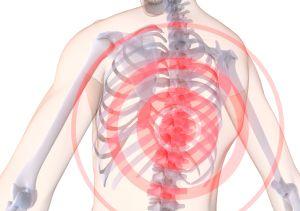 остеохондроз грудной