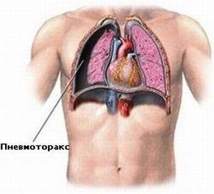 появление гемоторакса и пневмоторакса