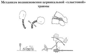 механихм хлыстовой травмы