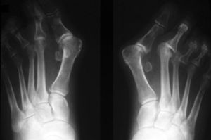 Рентген стоп