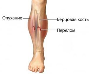 боли в ноге при переломе