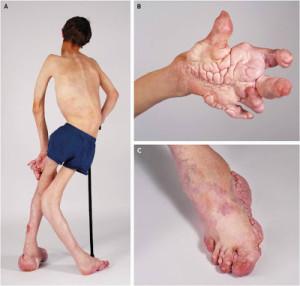 Симптомы синдрома маффучи