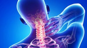 шейно плечевой синдром