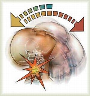 Хлыстовая травма шей лечение