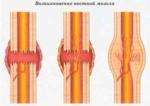 Костная мозоль после перелома: причины, симптомы и лечение, фото