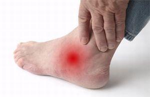 артрит стопы