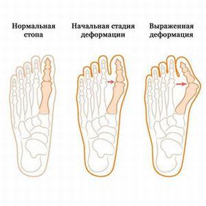 Вальгусная деформация пальцев