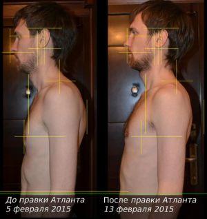 результат атласпрофилакса