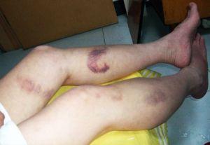 кровоподтеки на ноге
