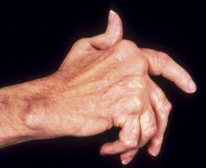 ревматоидный полиартрит одновременно всех суставов